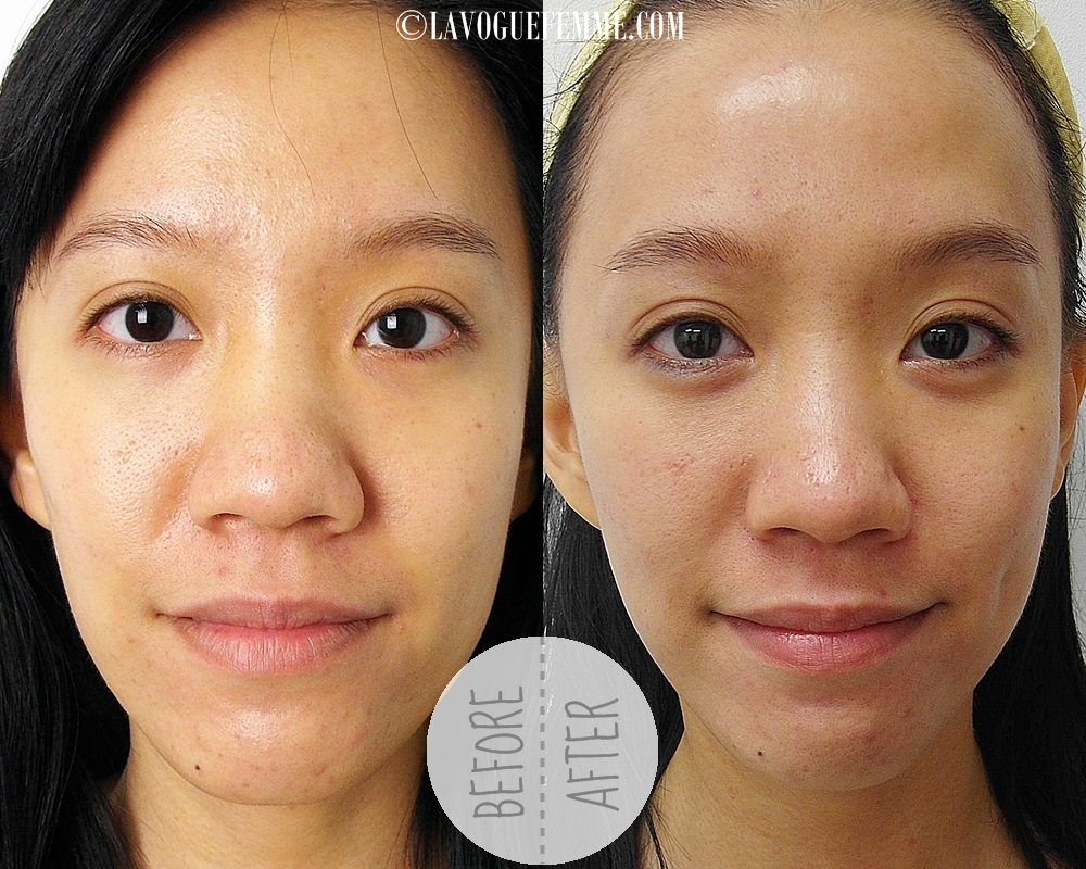 Dr Ko Skin Specialist Centre Fractional CO2 - Before & After Front