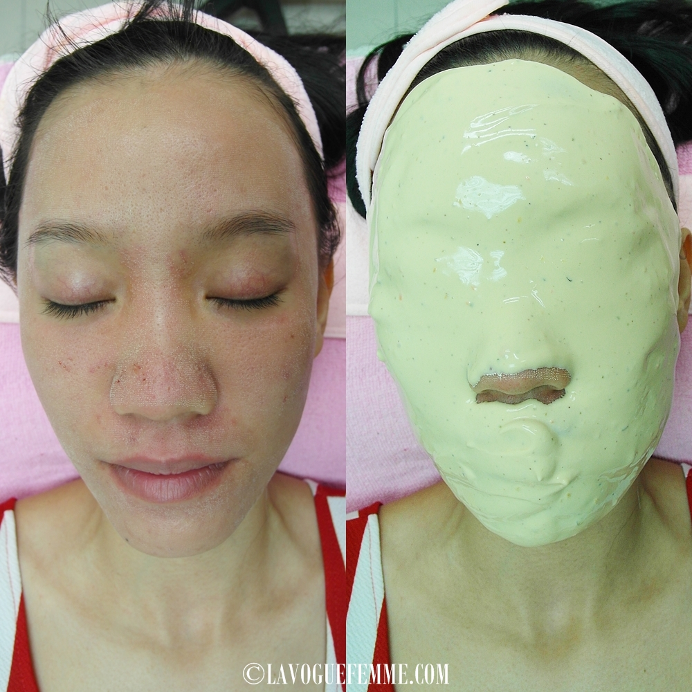 Dr Ko Skin Specialist Centre Fractional CO2 - Mask Treatment
