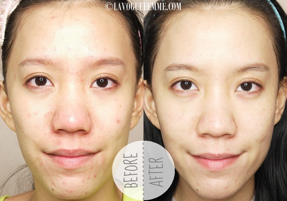 GlamGlow Supermud Clearing Treatment Before & After 2